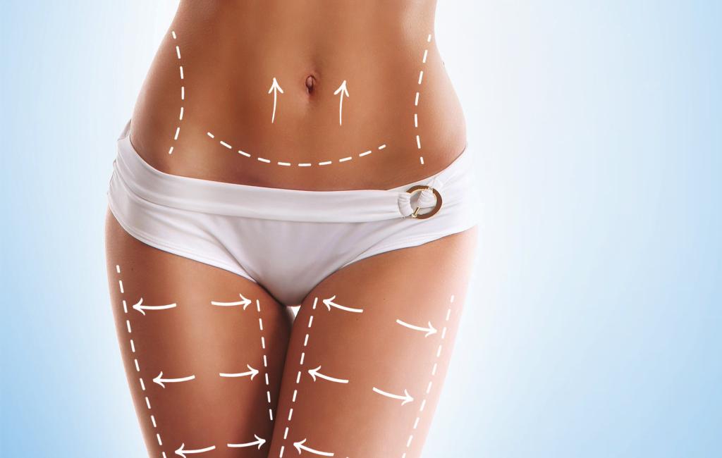 Slik fungerer egentlig fettsuging på kroppen
